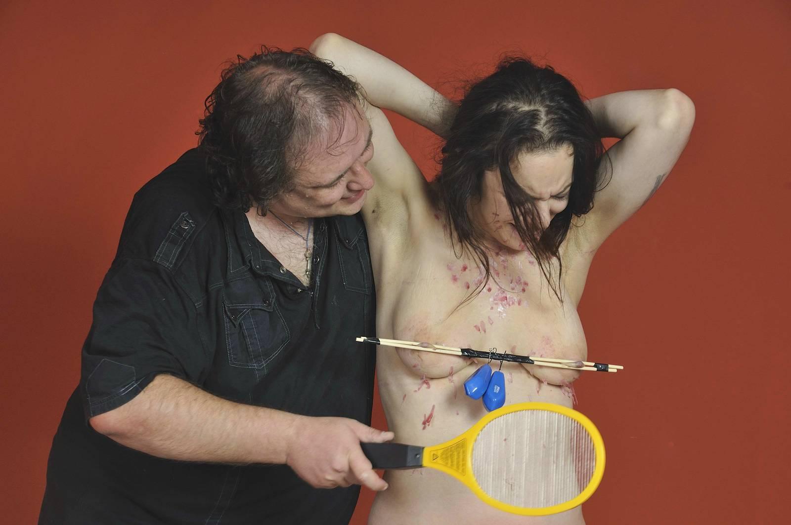 Pagets disease anus